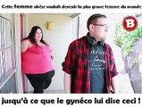 Cette femme obèse voulait devenir la plus grosse femme du monde jusqu'à ce que le gynéco lui dise ceci !