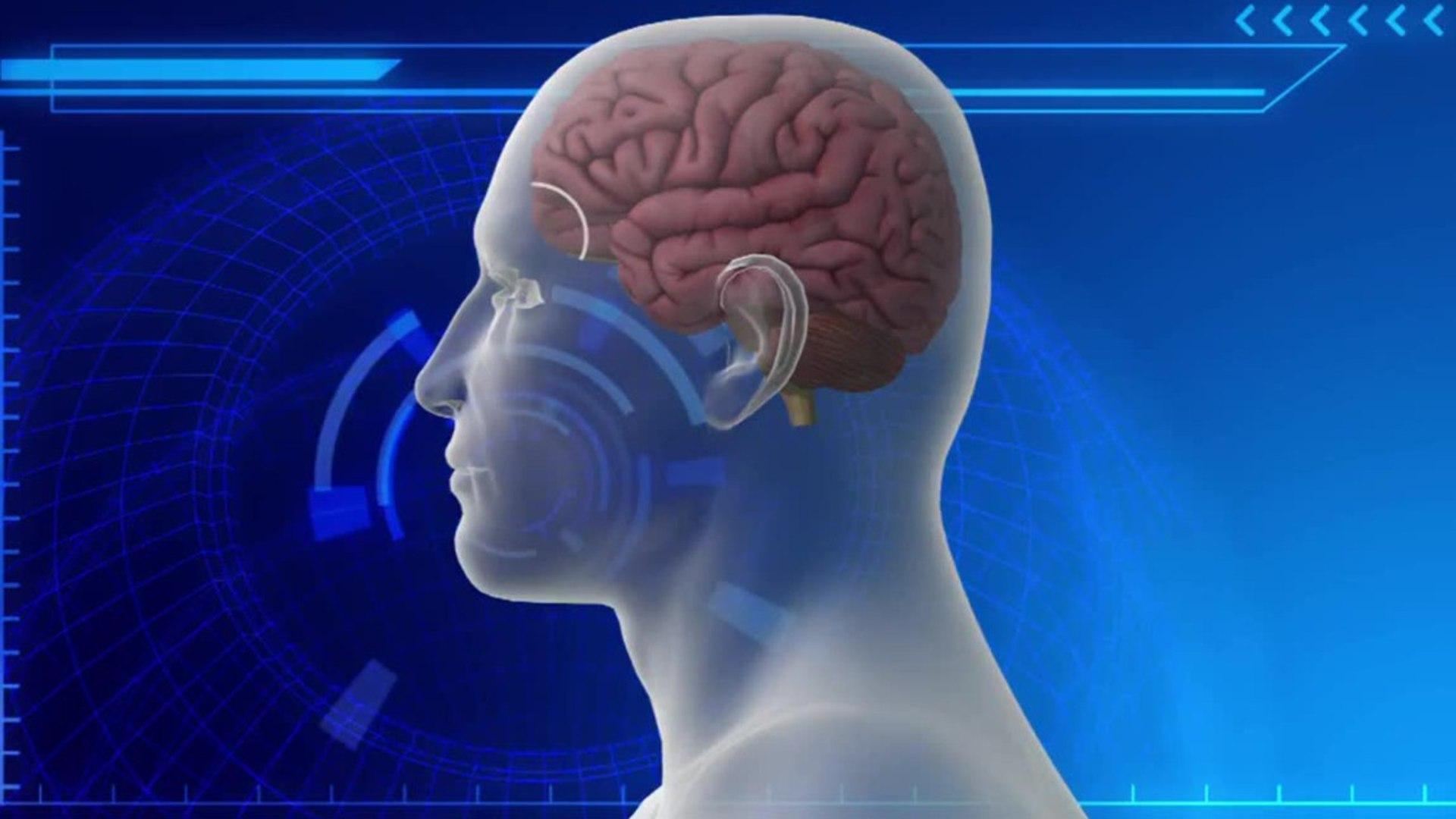 Brain Trauma in 99% of Dead NFL players