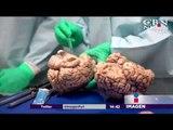 Lesiones cerebrales en casi todos los jugadores de NFL | Noticias con Yuri