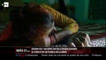 Desmayos y mujeres sin pelo desencadenan el pánico en un pueblo de la India