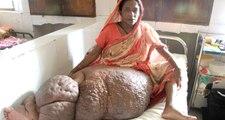 Fil Hastalığına Yakalanan Begüm'ün Bir Bacağı 60 Kiloya Çıktı