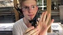 Il a 3 scarabées géants.. sur le VISAGE !!!!