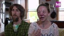 Une malformation sur le nez va l'obliger à se le faire retirer et reconstituer par chirurgie