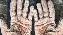 Ha solo 33 anni e pubblica la foto scioccante delle sue mani. Ecco chi è e cosa fa