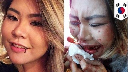 พนักงานคลับชกหน้า สาวอินโดรับเคราะห์ในเกาหลีใต้