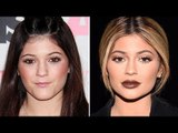 Kylie Jenner Talks About Her Infamous Lip Injections