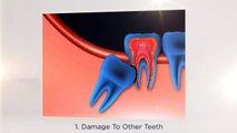 Wisdom Teeth Extractions in West Palm Beach