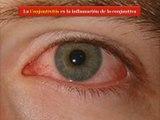 Conjuntivitis afecta a unas 1700 personas en el país