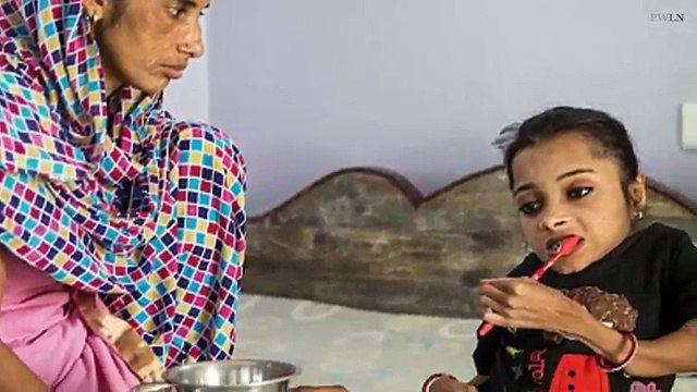 Girl has broken her bones more than 1000 TIMES due to rare condition in India