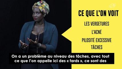 Black Girl Magic - Sandrine Assouan Kouao