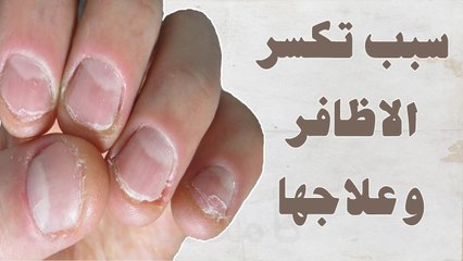سبب تكسير الأظافر ( علامات تشخص الأمراض ) ... #حكاية_ كل_ بيت
