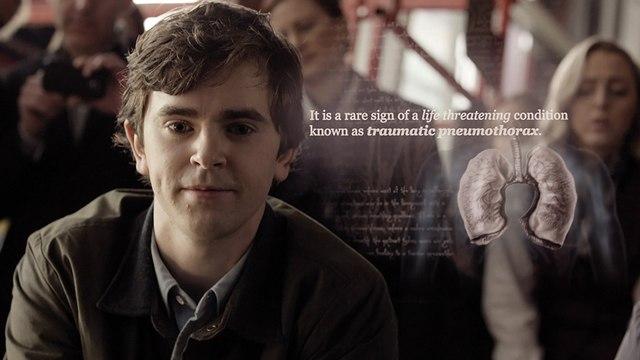 The Good Doctor Season 1 Episode 7 F.U.L.L .English*Subtitle. ((WATCH,,HD))