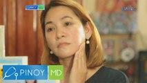 Pinoy MD: Solusyon sa acne scars, ano nga ba?