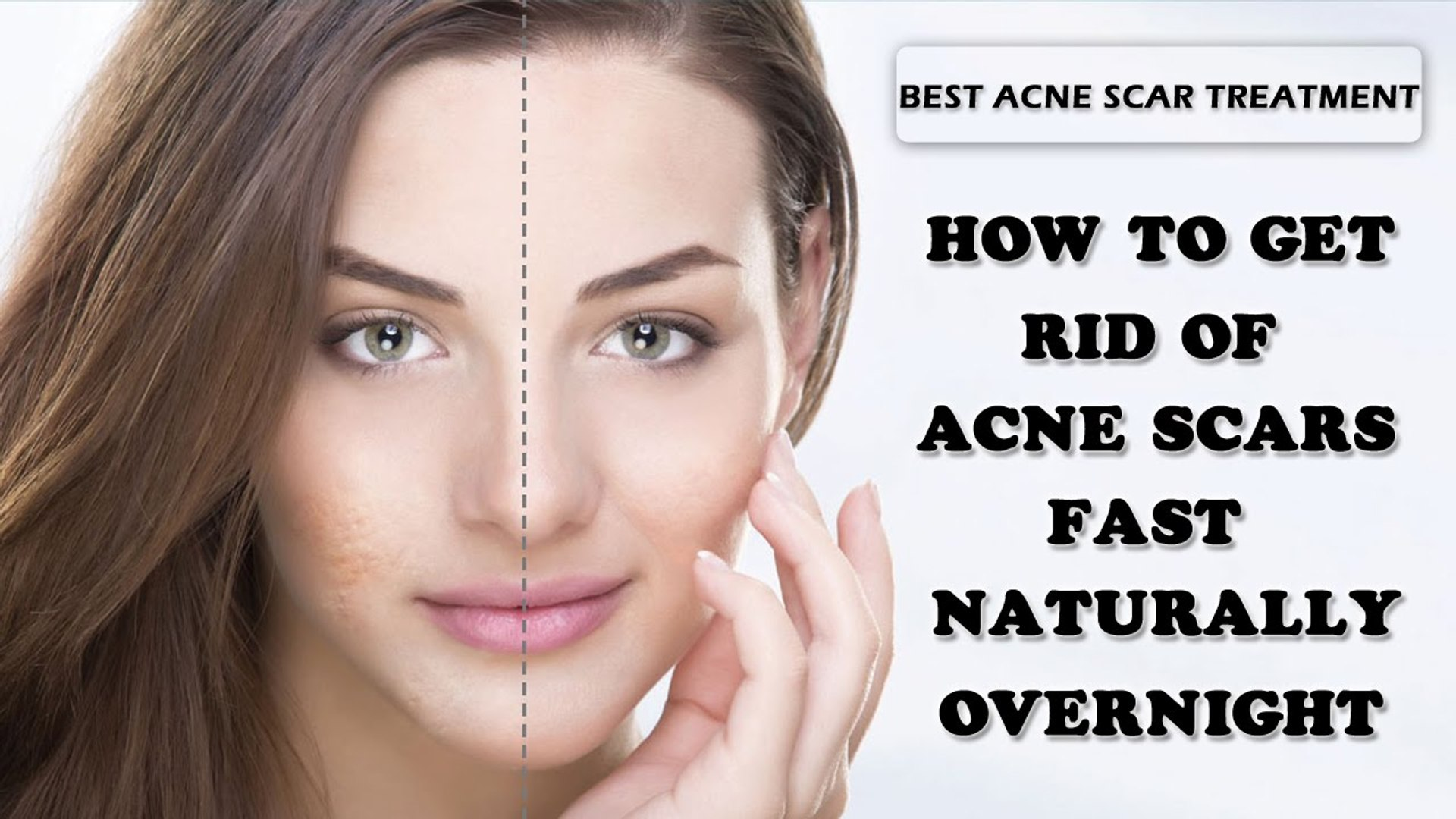 Get Rid Of Acne Scars Fast How To Get Rid Of Acne Scars Fast Naturally Overnight Video Dailymotion