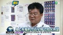 核子醫學檢測 身上留微量輻射