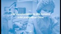 Une transplantation de tête humaine a été pratiquée en Chine