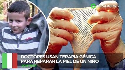 Terapia génica: Niño con rara enfermedad es salvado con piel cultivada en terapia génica - TomoNews