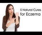 How to Cure Eczema Fast  5 Natural Cures for Eczema