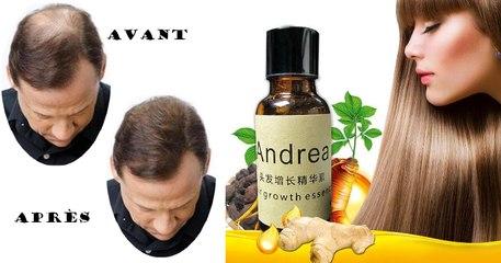 ANTI-HAIR LOSE, Essence de Croissance des Cheveux - 100% NATUREL