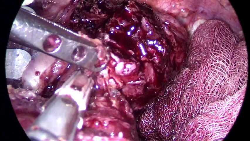 Darlık Nedeniyle Sleeve Gastrektomi'den Gastrik Bypass'a Revizyon