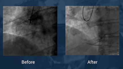 Tortuous and calcified ostial RCA CTO