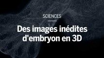 Des images inédites d'embryons et de fœtus humains