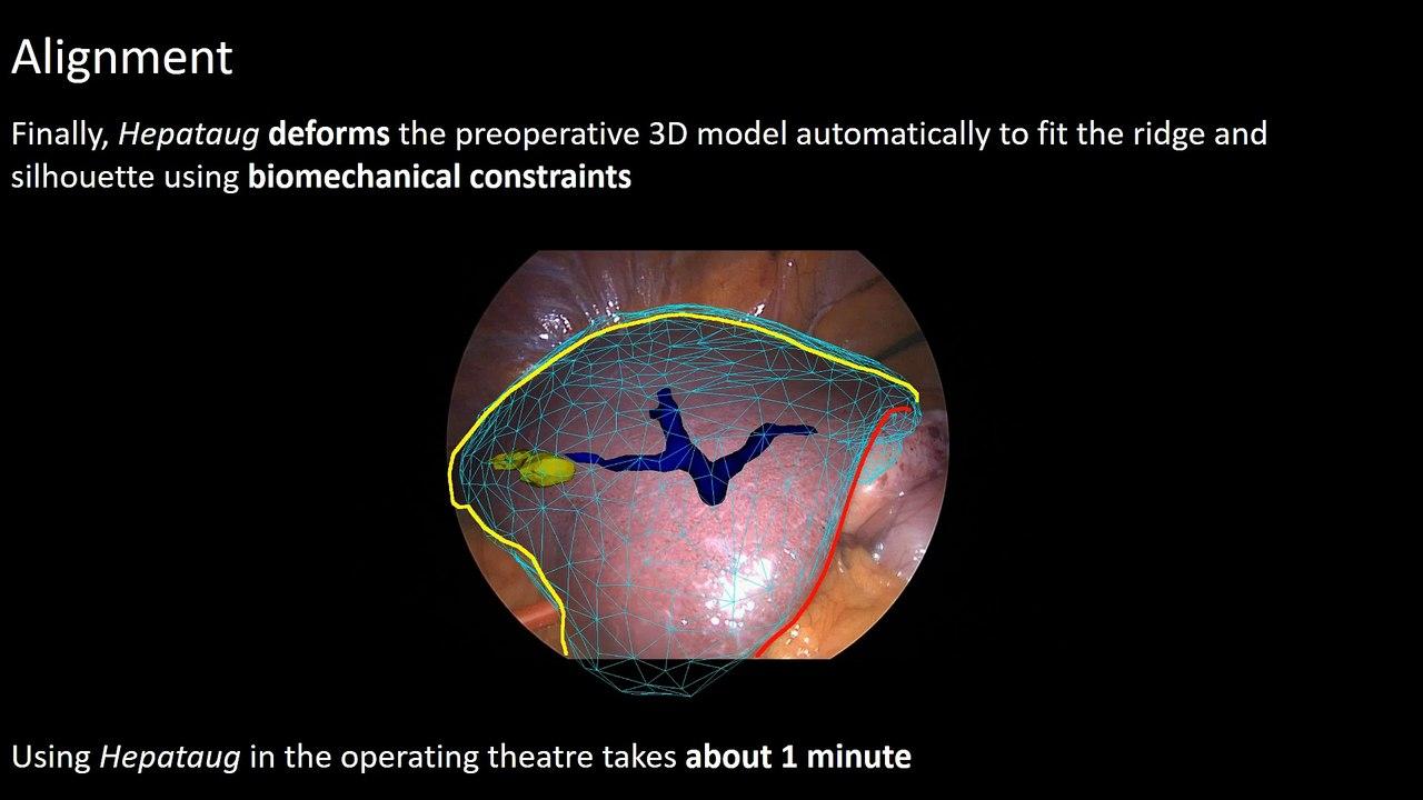 Hepataug: a Novel Augmented Reality Software for Hepatic Laparoscopy