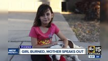 Mother speaks out after her daughter was severely burned