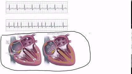03_Atrial Fibrillation
