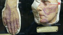 Mycoses, verrues, lupus: découvrez le musée des moulages dermatologiques