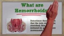 Hemorrhoids Symptoms - Hemorrhoids Symptoms and Treatment - Hemorrhoids Symptoms Itching ,  Hemorrhoid Treatment