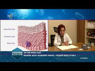 Rahim ağzı kanseri belirtileri ve korunma yolları | Op. Dr. Nida DAİ
