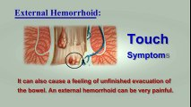 Hemorrhoids Symptoms – Top 10 Signs between External Hemorrhoids and Internal Hemorrhoids | Hemorrhoid Treatment