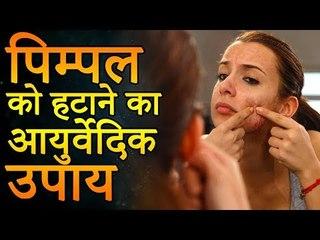 एक ही रात में पिम्पल्स कैसे हटाए | पिम्पल्स को हटाने के आयुर्वेदिक उपाय | Remedies for Pimples