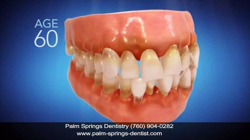 Invisalign Dentist Palm Springs CA