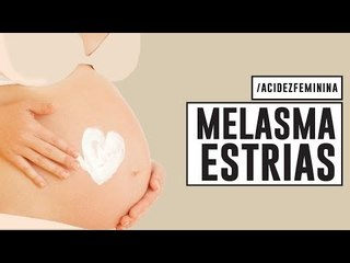 CUIDADOS com a PELE na GRAVIDEZ   MELASMA, ESTRIAS, ACNE, VARIZES com Dra Cintia Cunha