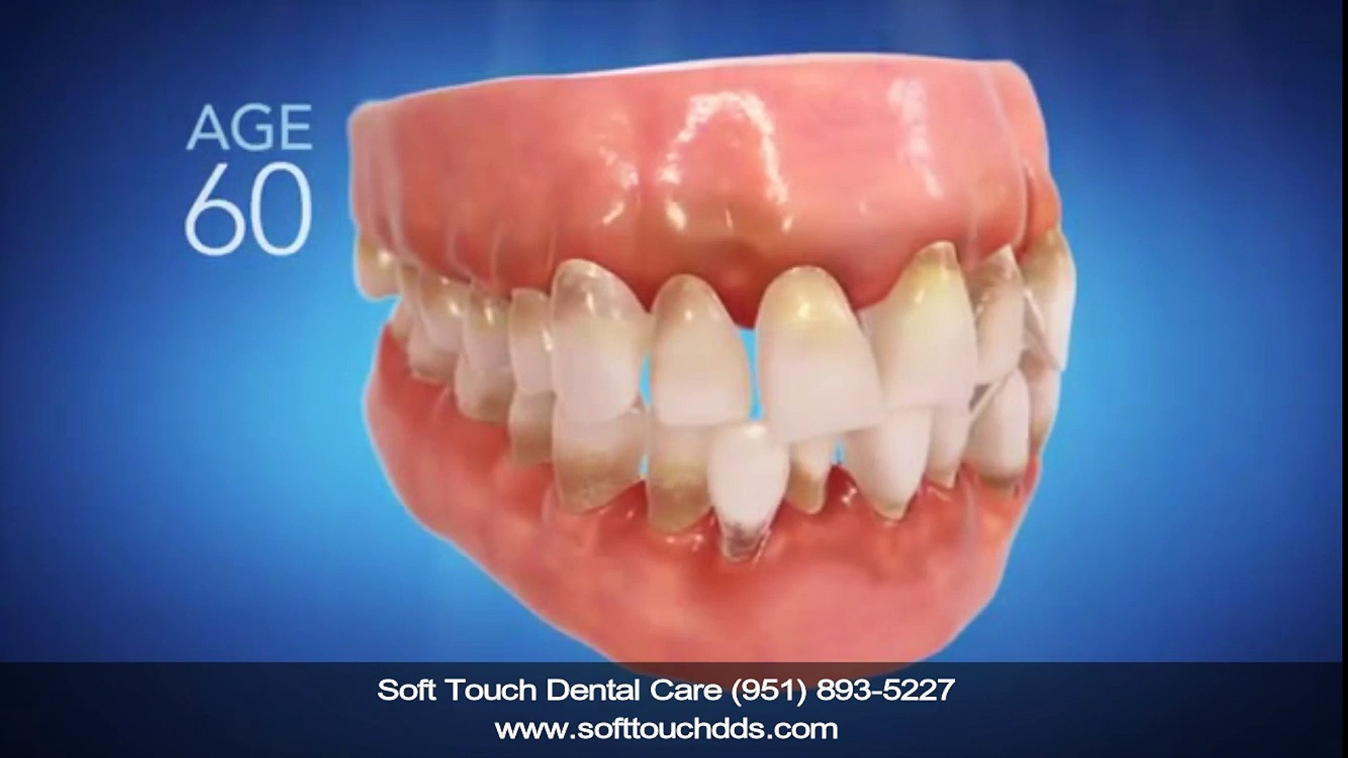 Invisalign Dentist Corona CA