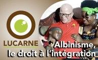 Lucarne : Albinisme, le droit à l'intégration