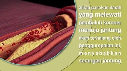SERANGAN JANTUNG - Penyebab dan Tanda Penyakit Jantung