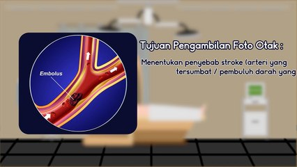 CHECK UP STROKE 5 DIAGNOSIS, PENGOBATAN STROKE