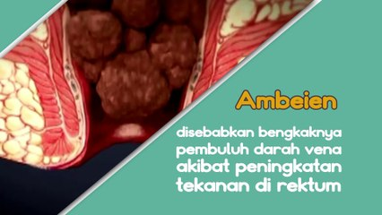 AMBEIEN - Siapa Yang Beresiko dan Penyebab