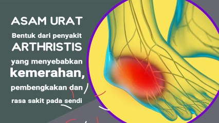 ASAM URAT 1-Pengertian dan penyebab