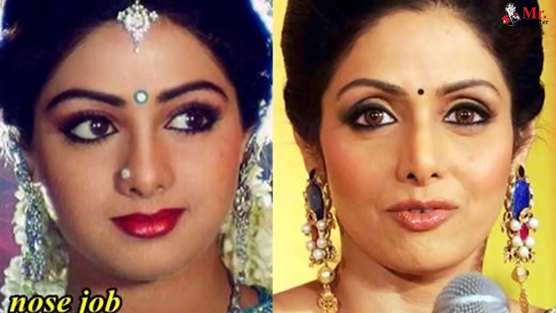 TOP 10 Bollywood Actresses Who Looks Horrible After Plastic Surgery - You  Won't Believe (1)