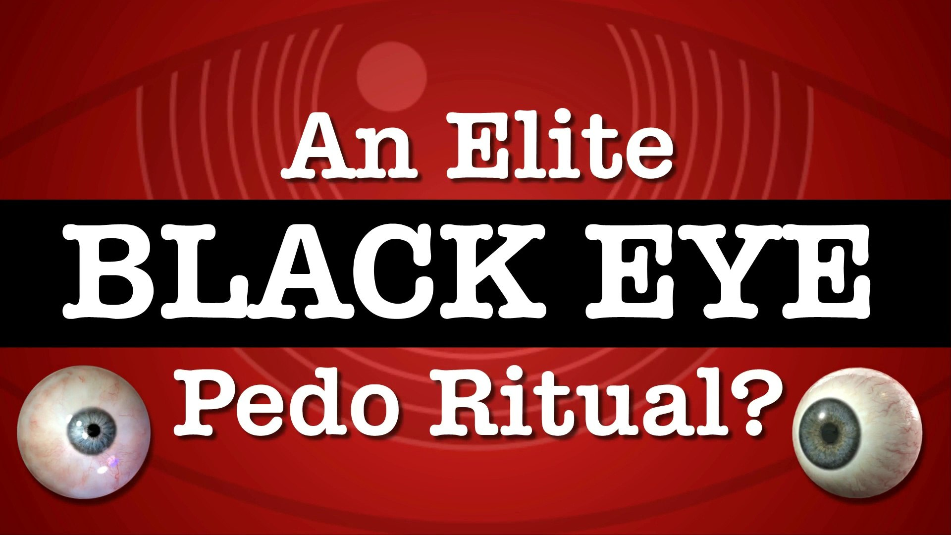Elites Using Black Eyes As Sign For Pedophile Club?