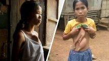 Veronica, une jeune Philippine de 14 ans, a une sœur jumelle parasite qui sort de sa poitrine