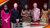 Chers amis, je vous invite à soutenir la Fédération des Albinos du Sénegal lors de la journée dédiée aux Albinos du Sénégal qui aura lieu à Thiès le samedi 23 j