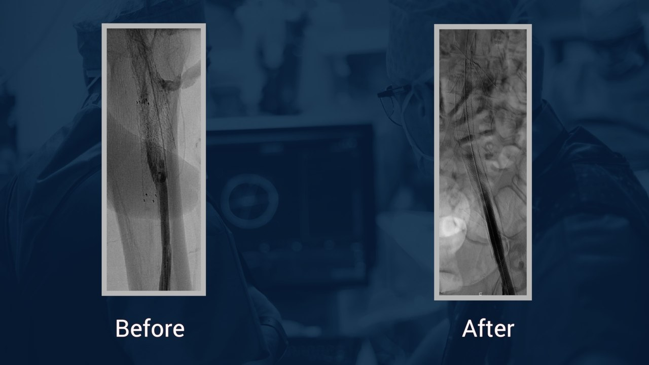 Attempted recanalization of chronically thrombosed limb of Iliocaval reconstruction