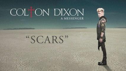 Colton Dixon - Scars