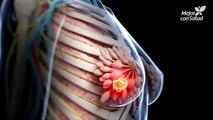 Cáncer de mama - Síntomas y señales de alerta