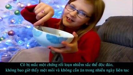 5 Đứa Trẻ Khác Thường Nhất Thế Giới Bạn Từng Thấy